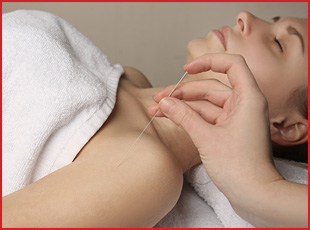 Elevation Physiotherapy & Wellness :: Acupuncture and Dry Needling Services